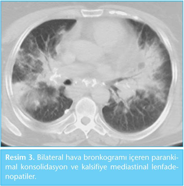 pozitron emisyon tomografisi pdf